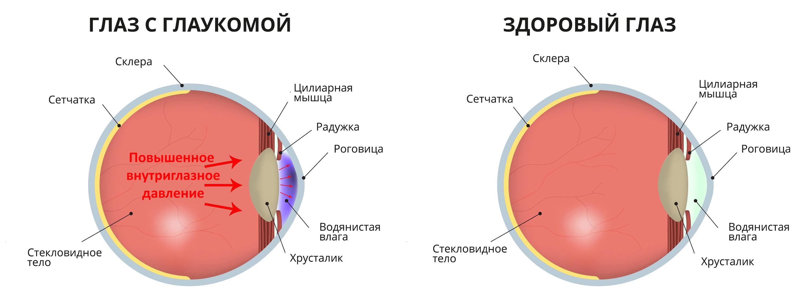 Глаз с глаукомой - схема